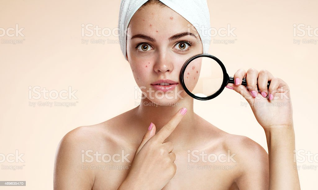 girl with problem skin look at pimple with magnifying glass stock photo
