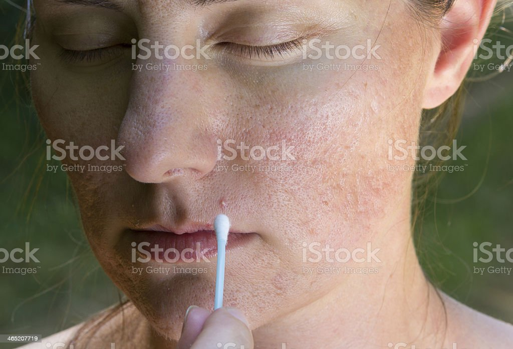Girl with problematic skin stock photo
