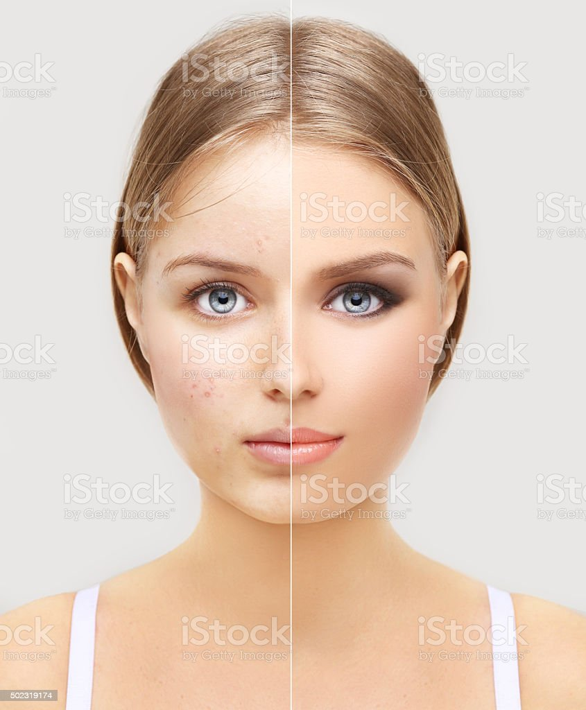 Girl without  make-up and one  with makeup stock photo