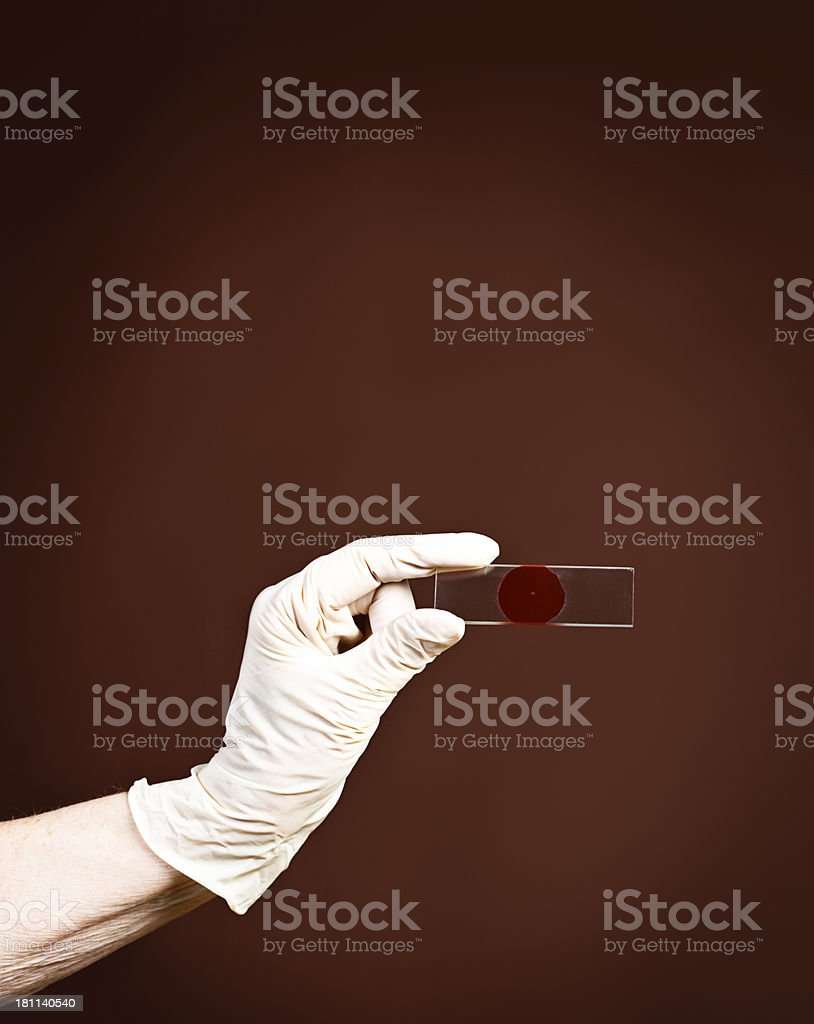 Gloved hands hold lab slide with blood specimen royalty-free stock photo