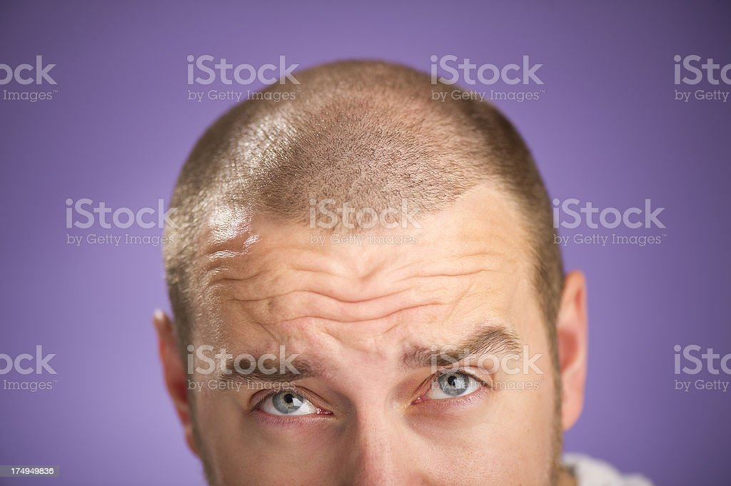 going thin on top stock photo