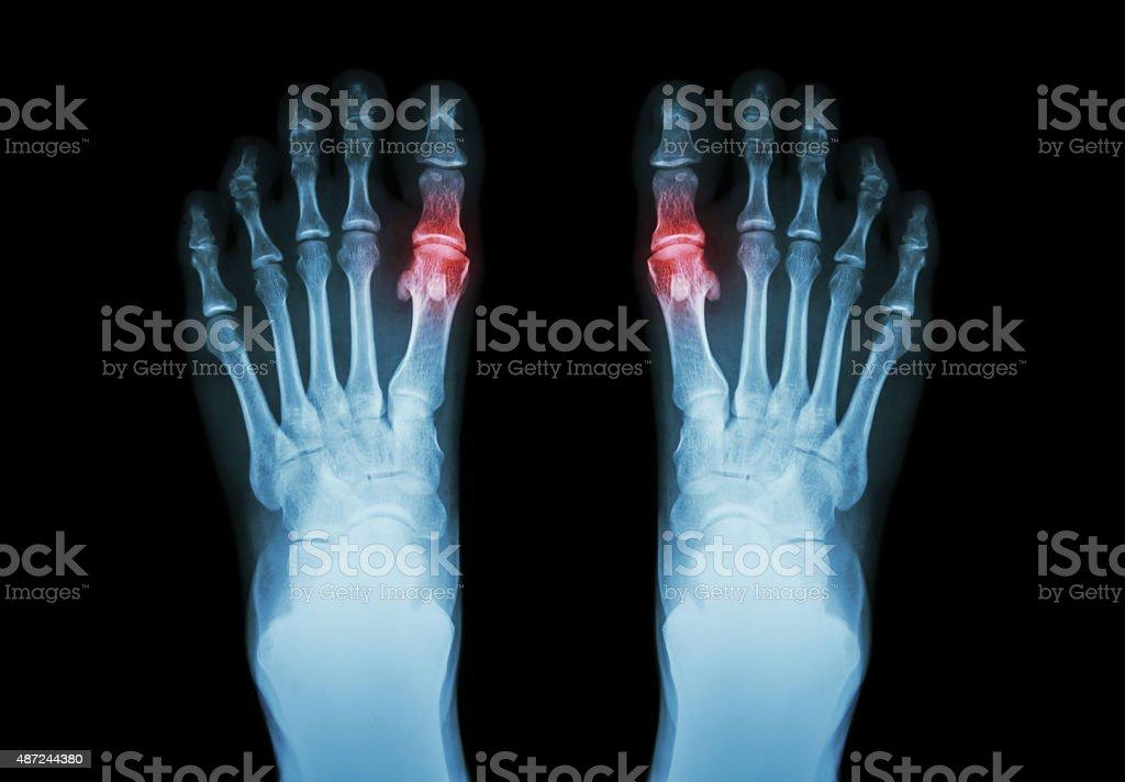 Gout , Rheumatoid arthritis stock photo