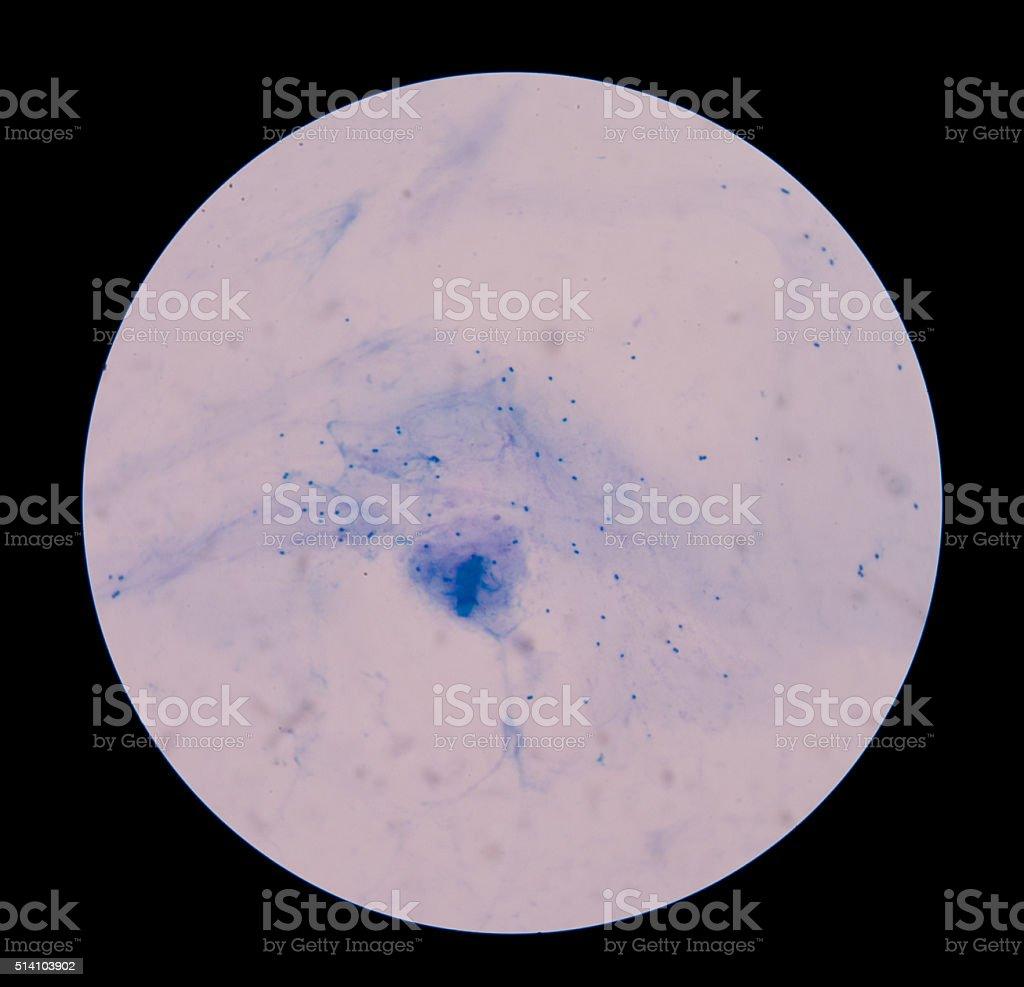 Gram staining, stock photo