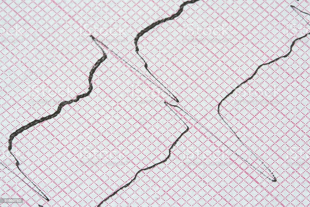 ECG graph royalty-free stock photo