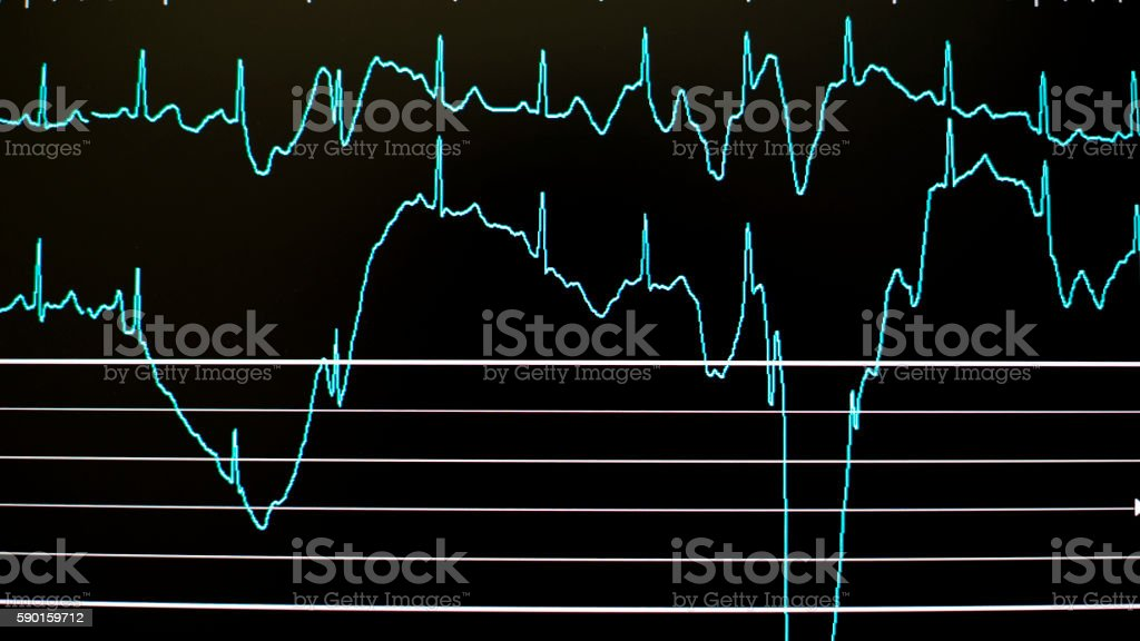 Graphs of an ill person - Cardiology stock photo
