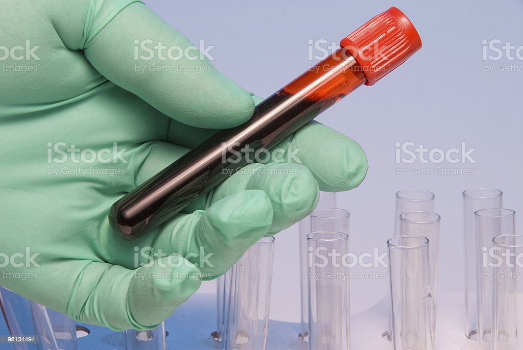 Green gloved hand holding blood sample in test tube stock photo