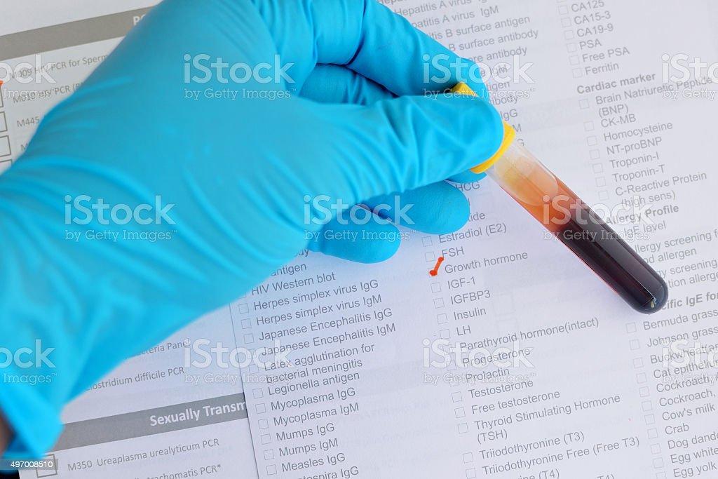 Growth hormone testing stock photo
