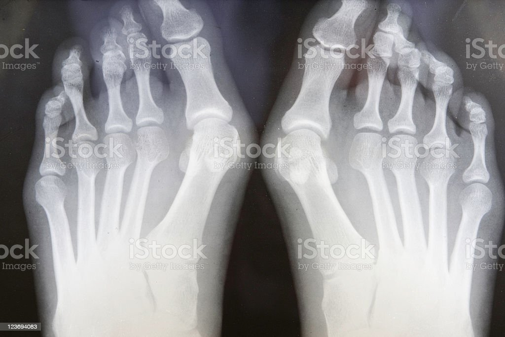 Grungy X-ray Of Feet With Bunions stock photo