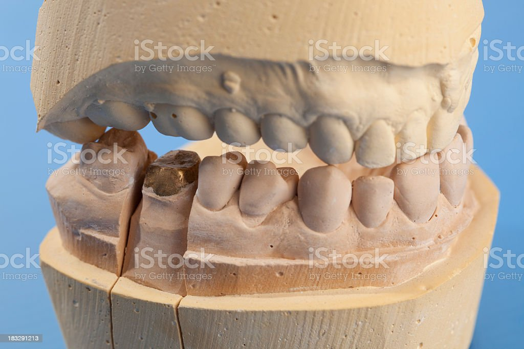 Gypsum tooth model with golden crown. stock photo