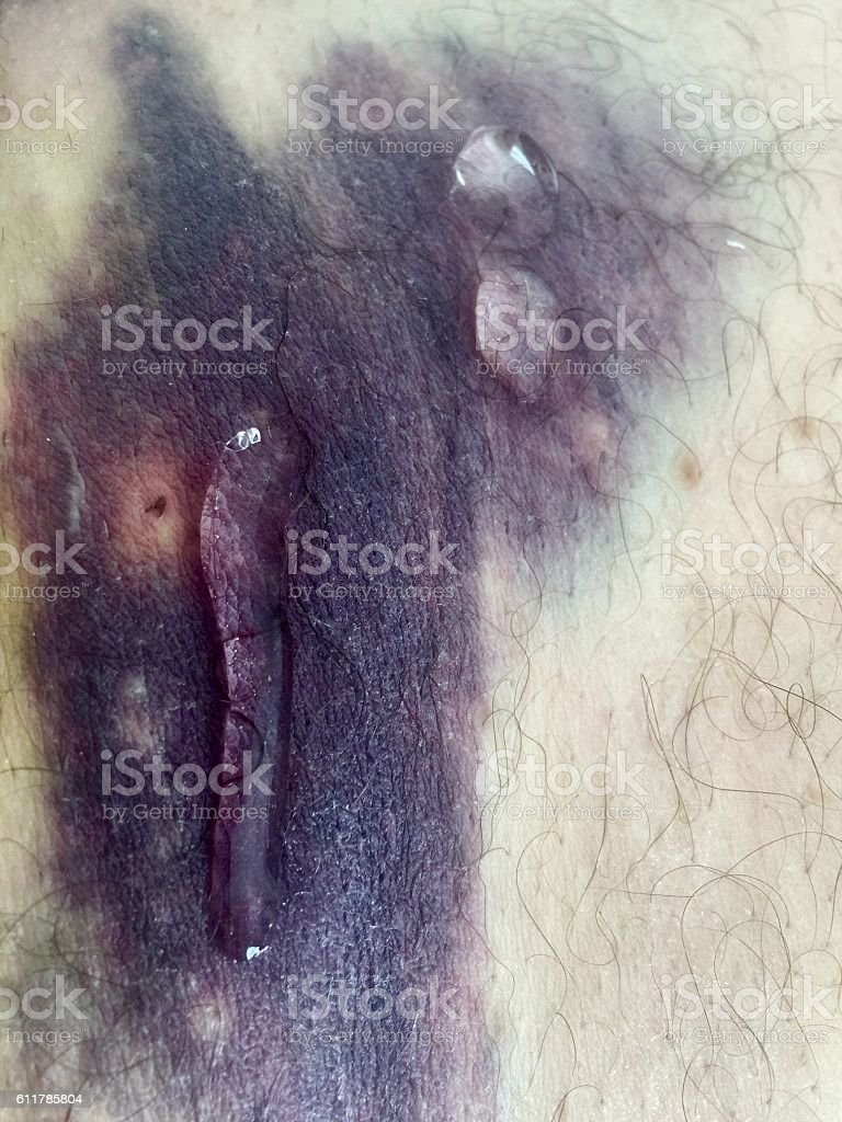Haematoma with cream gel medical stock photo
