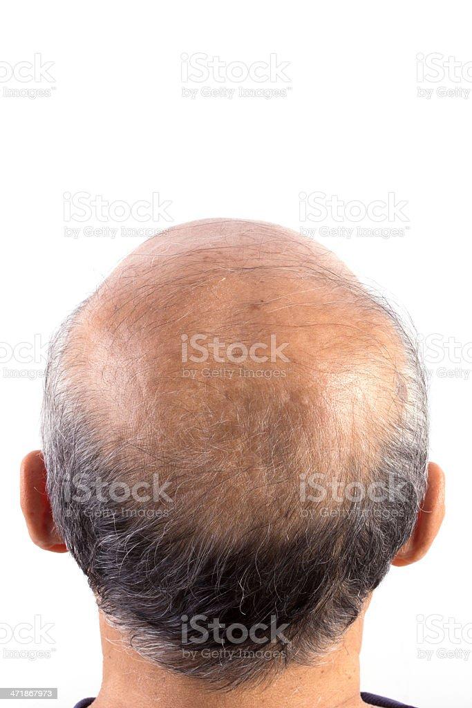 hair loss bald man royalty-free stock photo