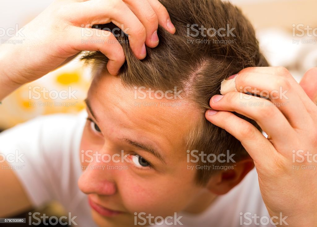 Hair loss comes even in youth stock photo