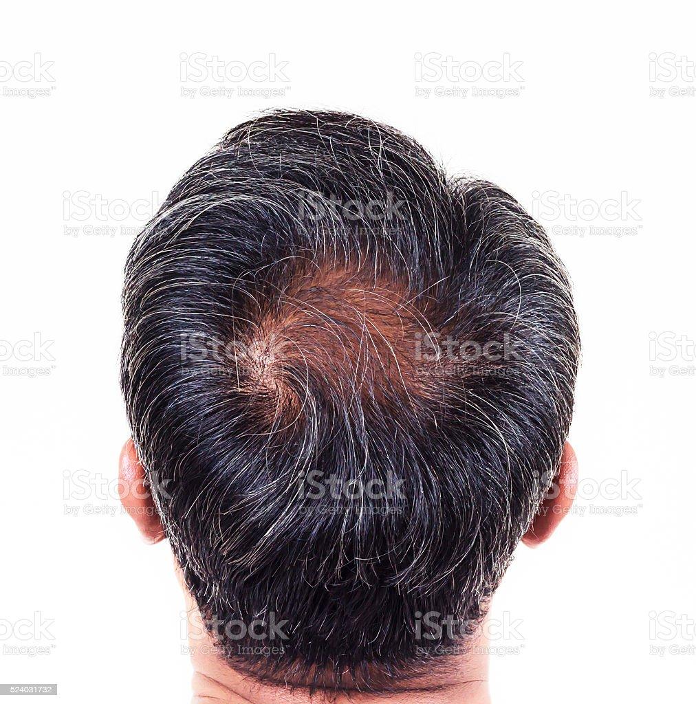 hair loss , Male stock photo