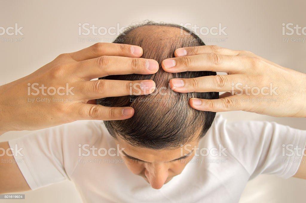 Hair loss stock photo