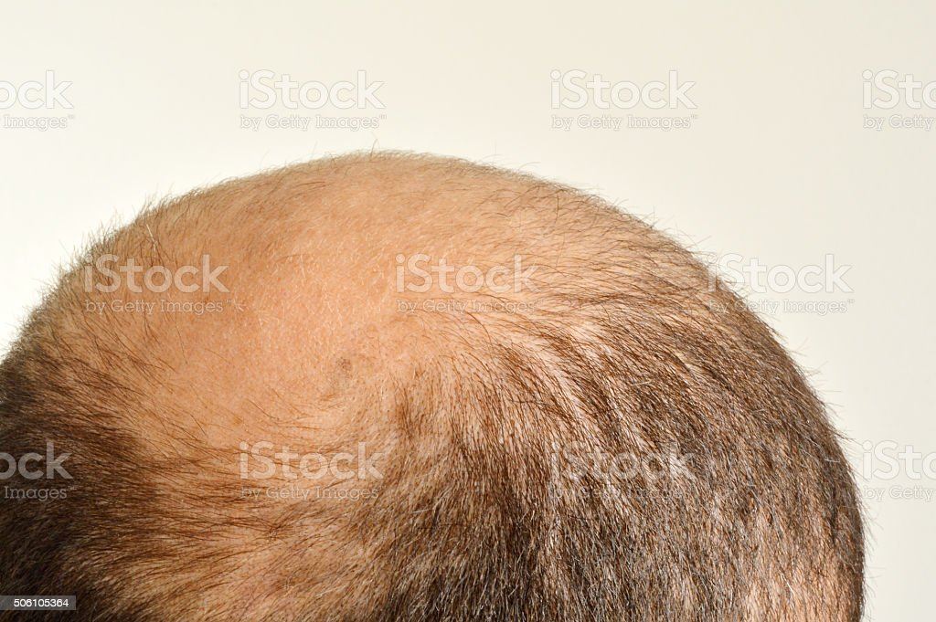 Hair Loss (Click for more) stock photo