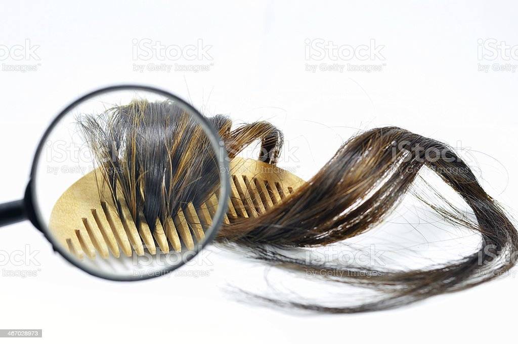Hair loss problem royalty-free stock photo