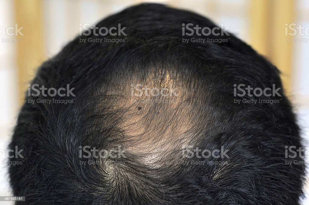 ?hair loss problem royalty-free stock photo