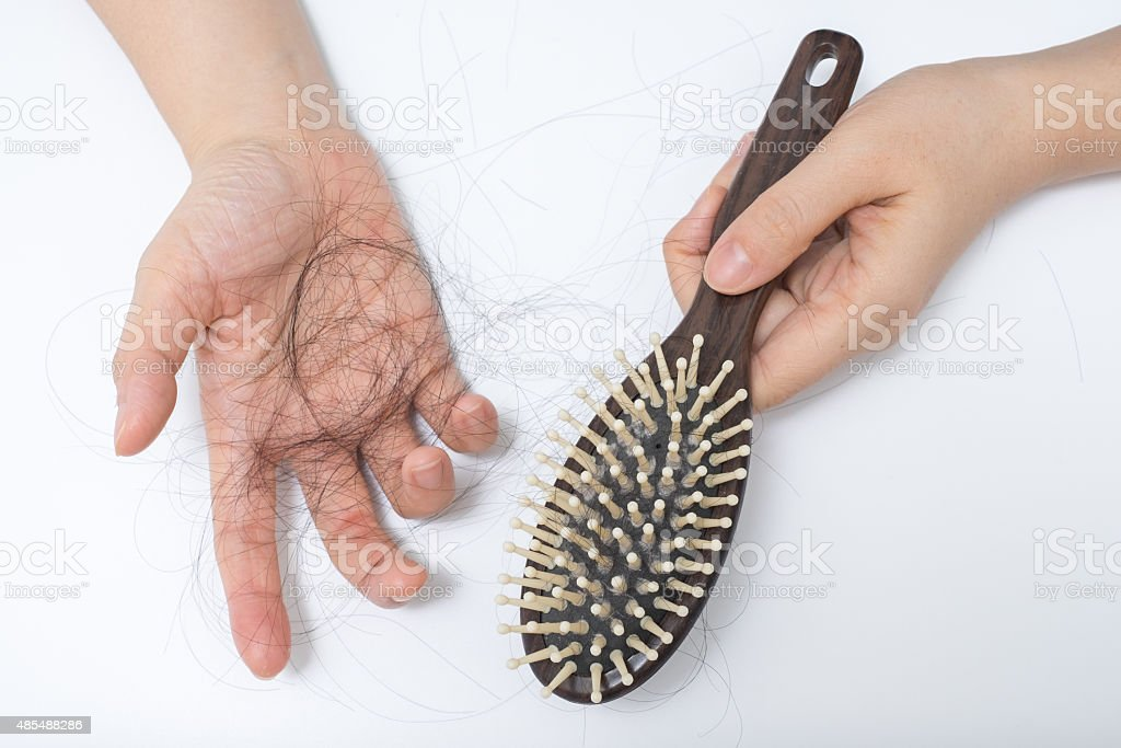 Hair loss problem stock photo