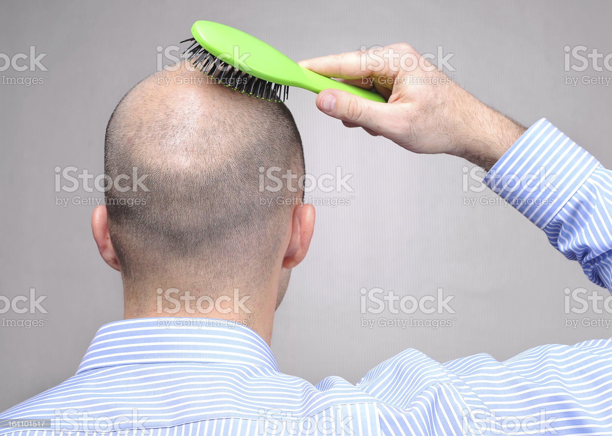 Hair loss problems royalty-free stock photo