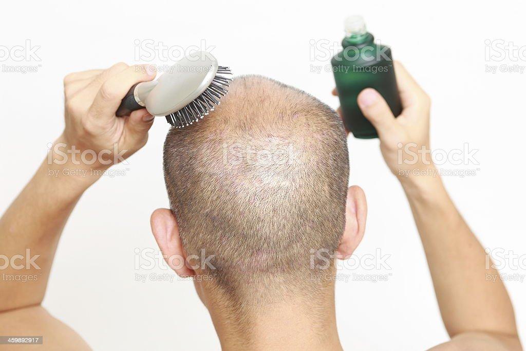 Hair restorer stock photo