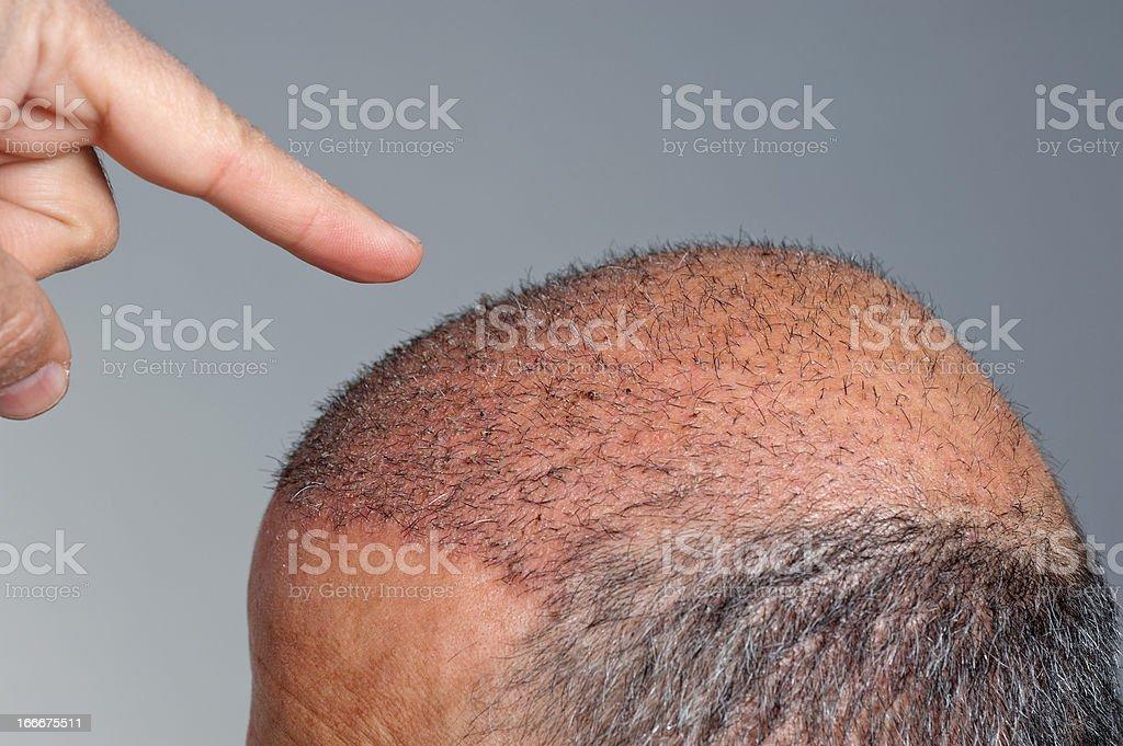 hair transplant stock photo