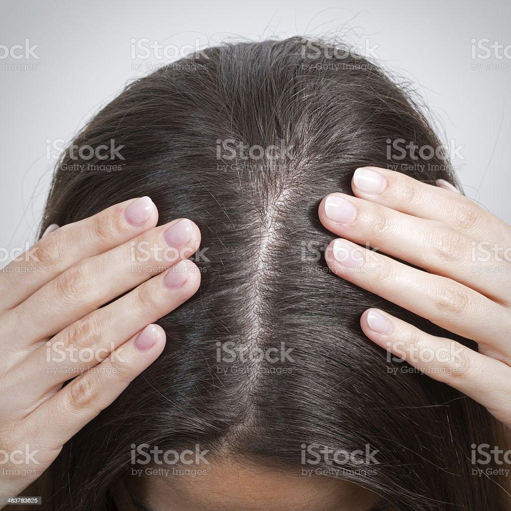 Hairline / Haaransatz stock photo