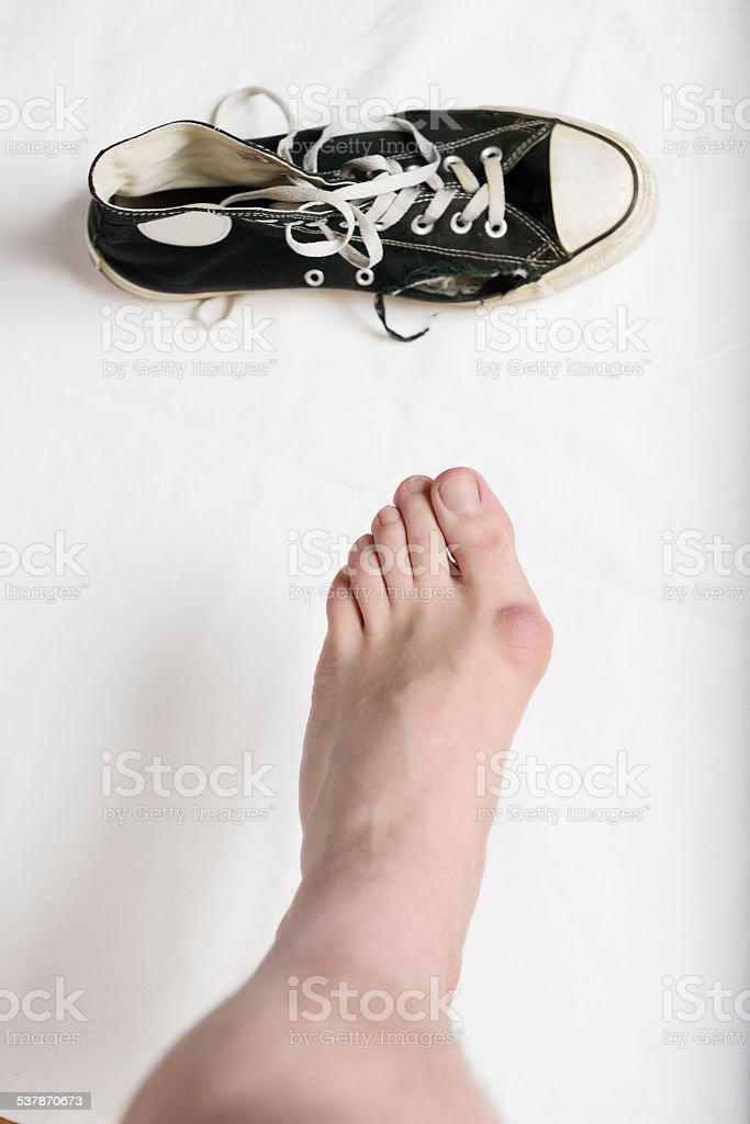 Hallux valgus and a ruined shoe. stock photo