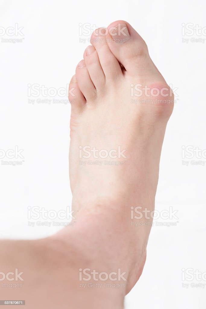 Hallux valgus, bunion in foot stock photo
