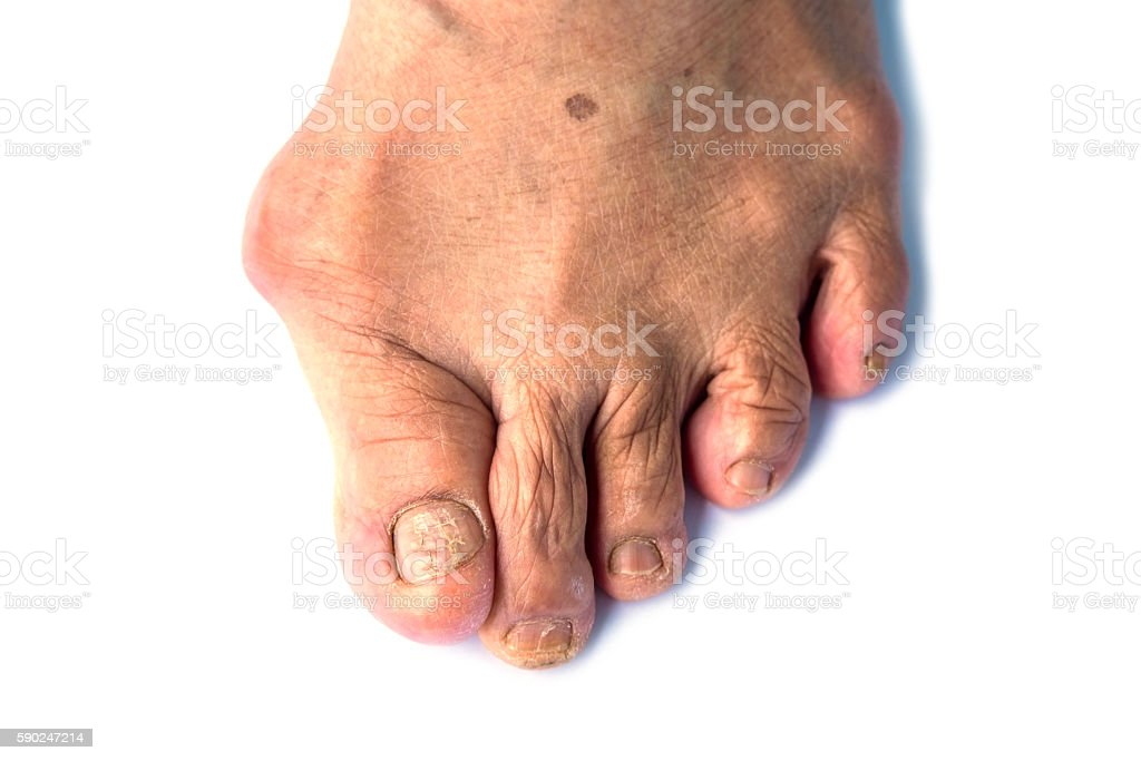 Hallux valgus on pink foot scraper stock photo