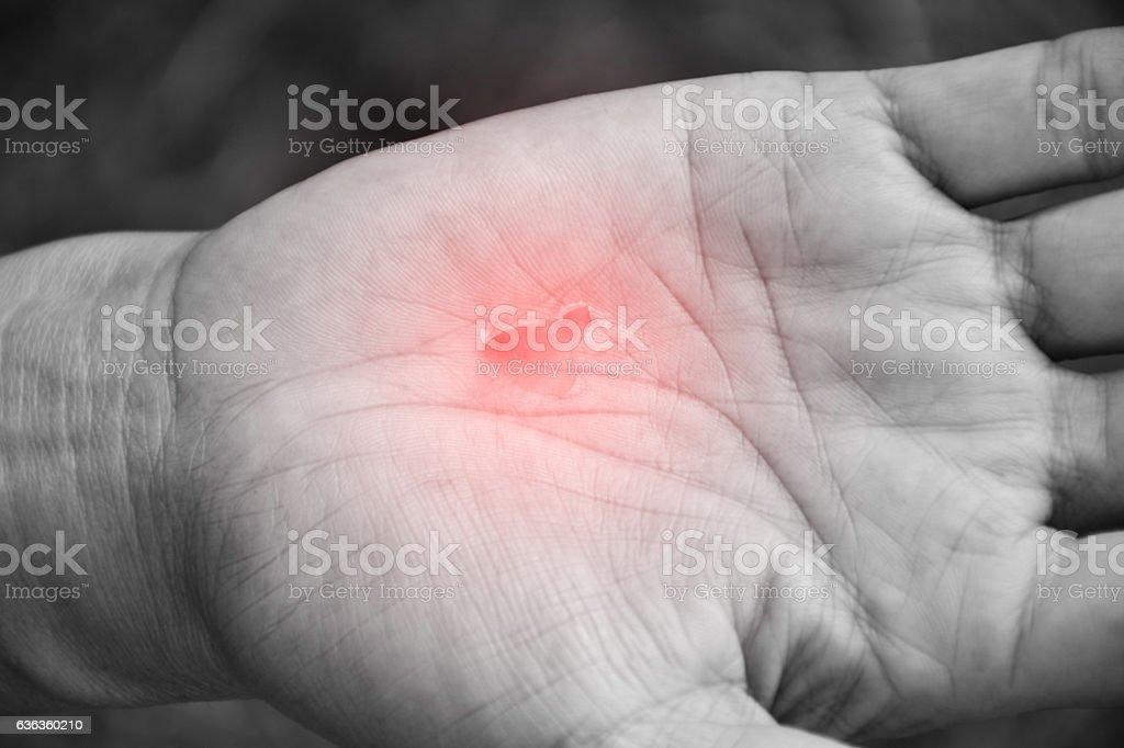 Hand abrade skin of human and pain. stock photo
