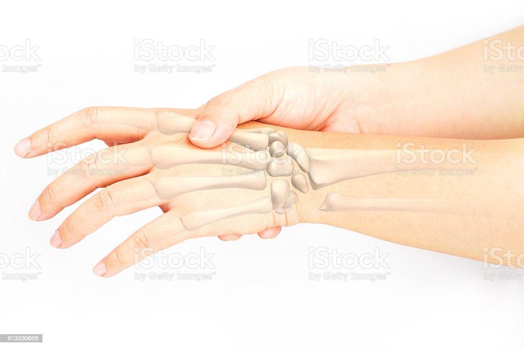 hand bones injury stock photo