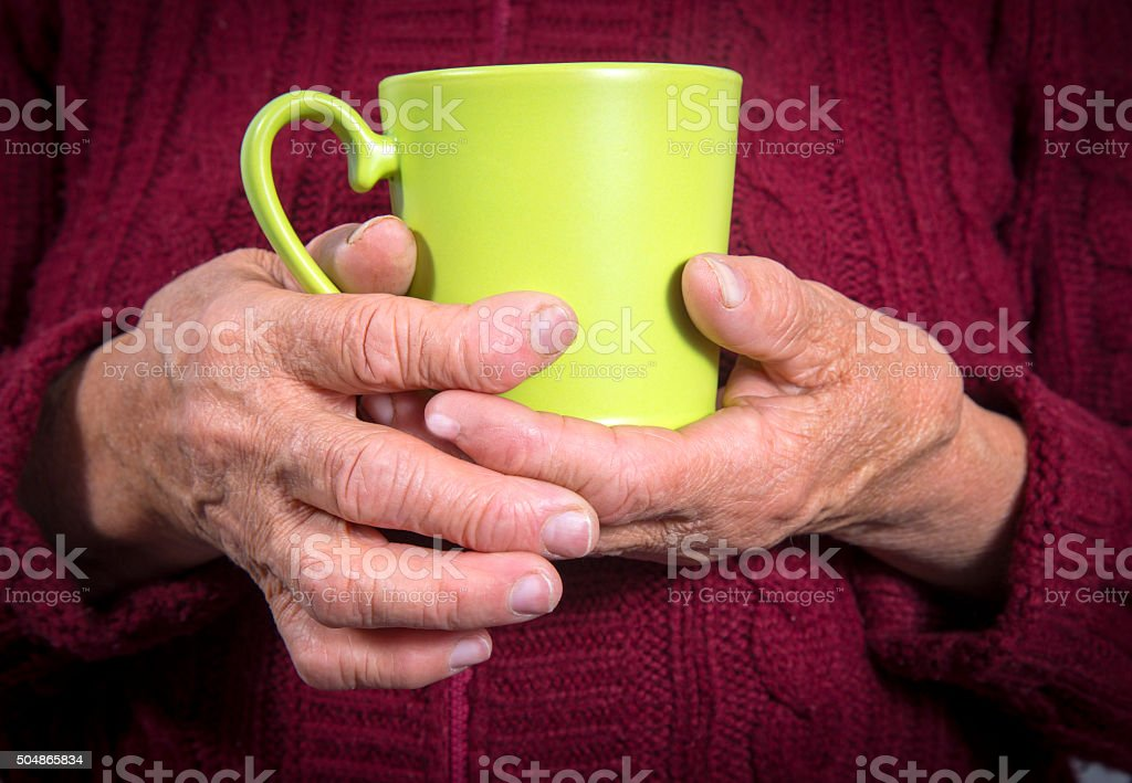 Hand Deformed From Rheumatoid Arthritis royalty-free stock photo