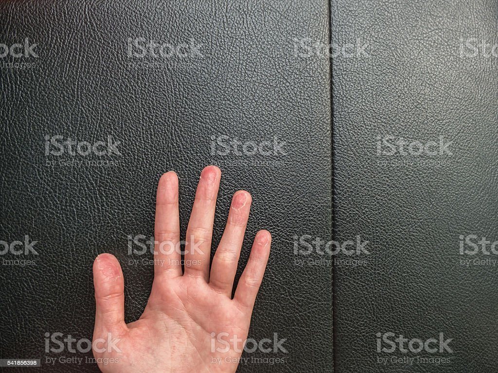 Hand eczema on black leather background with Copy space stock photo