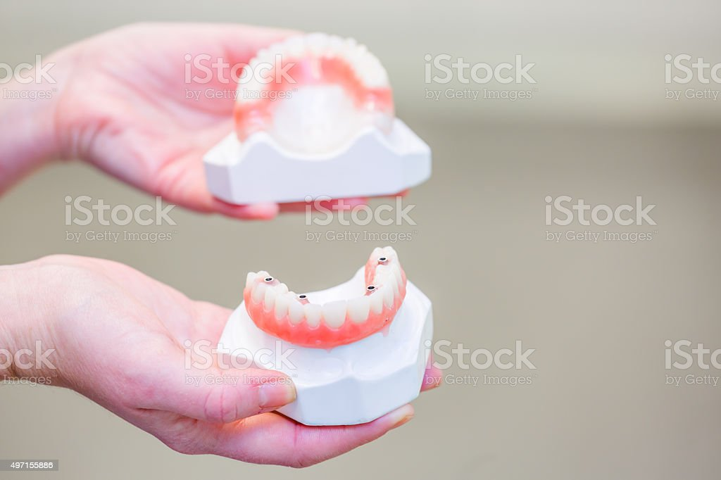 Hand holding a set of dentures stock photo