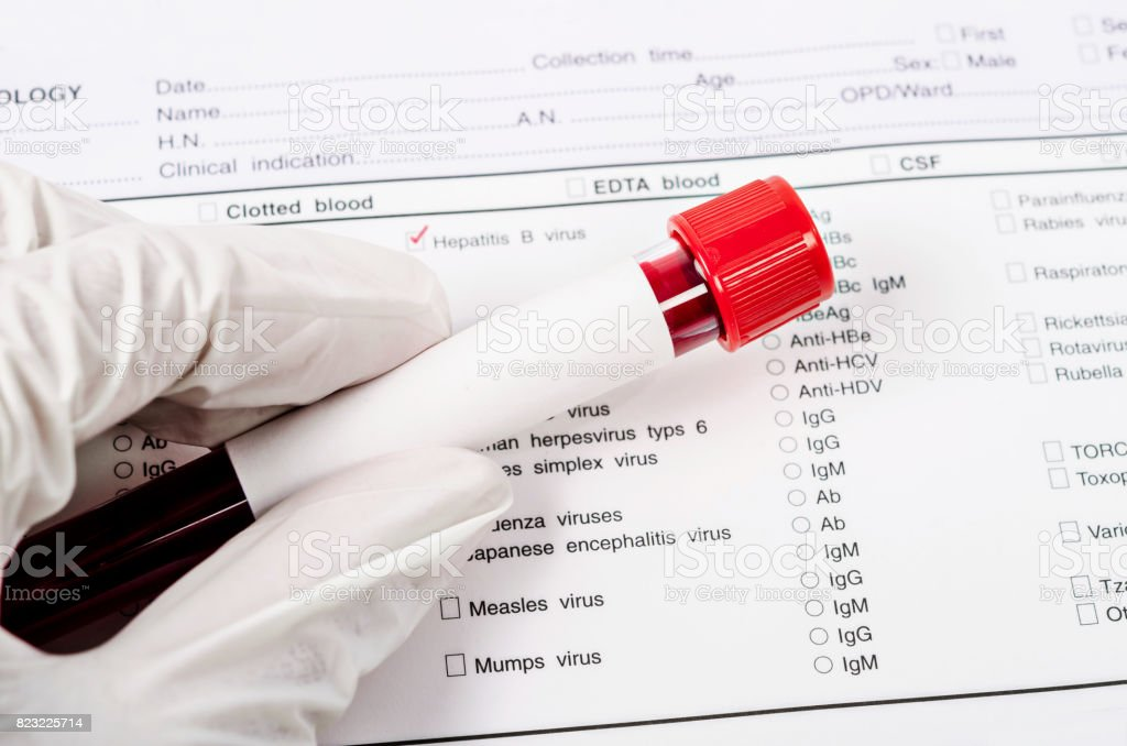 Hand holding Blood tube for hepatitis testing stock photo