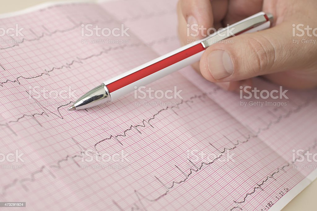 hand holding pen indicates  beats in ECG stock photo