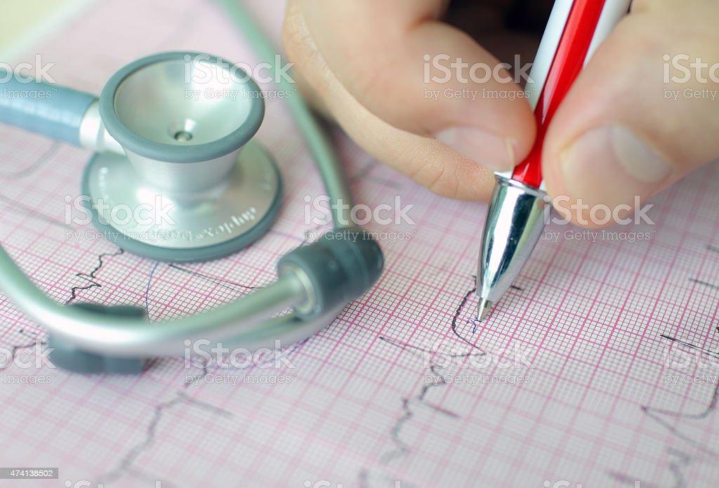 hand holding pen making mark on ECG stock photo