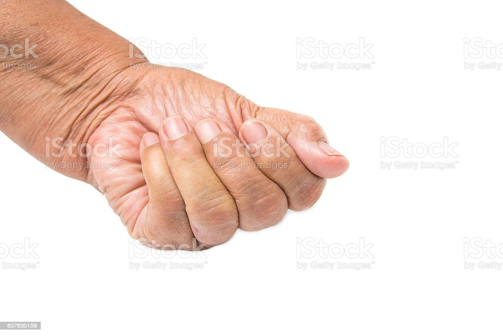 hand of old woman a Trigger finger stock photo