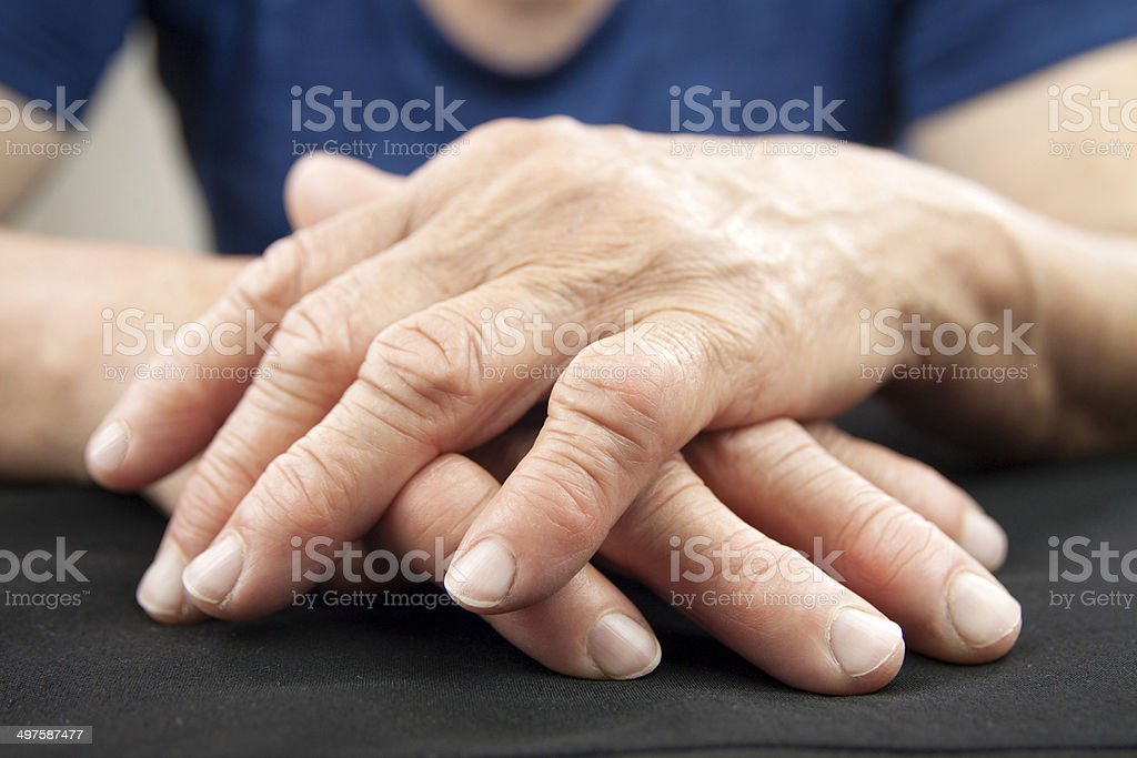 Hand Of Woman Deformed From Rheumatoid Arthritis stock photo