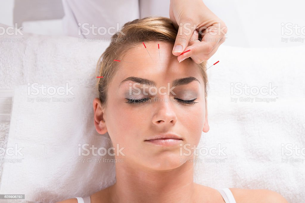 Hand Performing Acupuncture Therapy On Patient's Head stock photo
