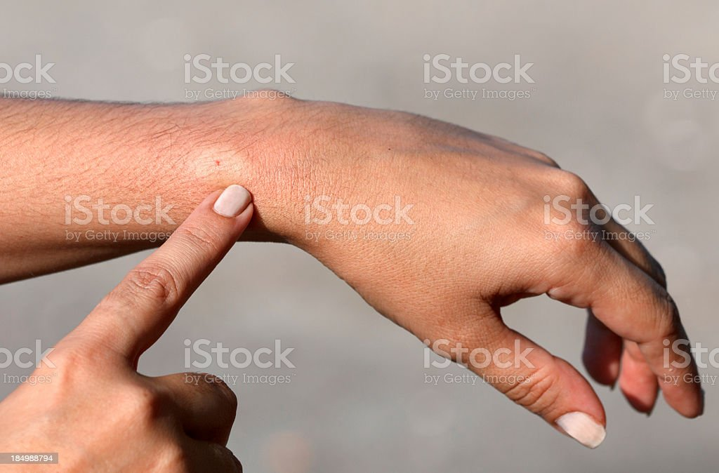 Hand pointing to a persons wrist where they have a bee sting stock photo