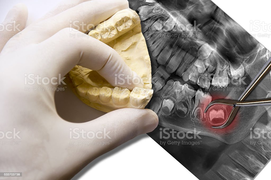 hand show molar tooth and toothache molar tooth stock photo