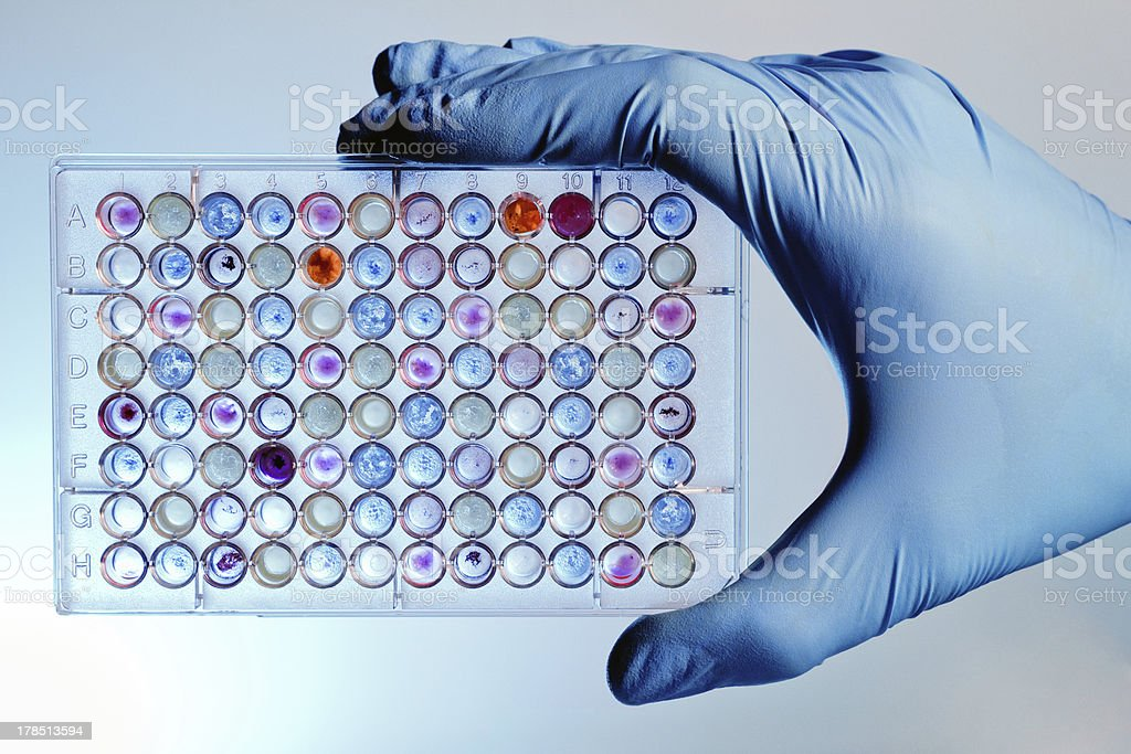 Hand with a microplate assay stock photo