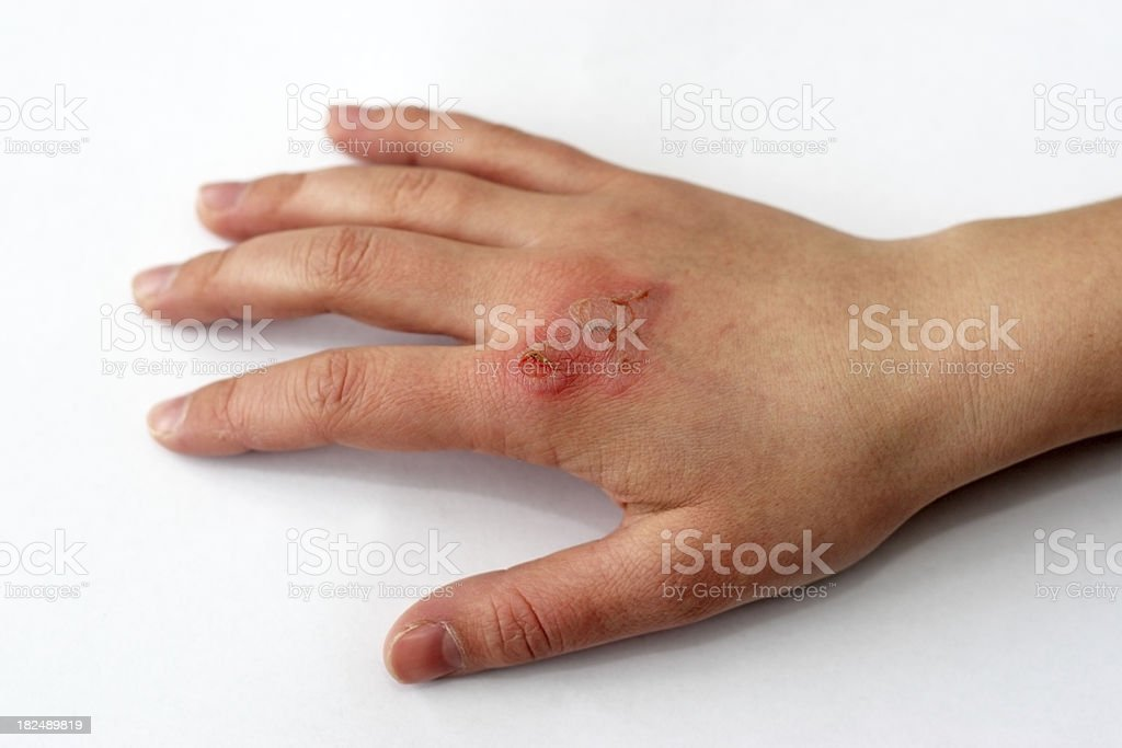 Hand with a third degree burn after fire damage stock photo