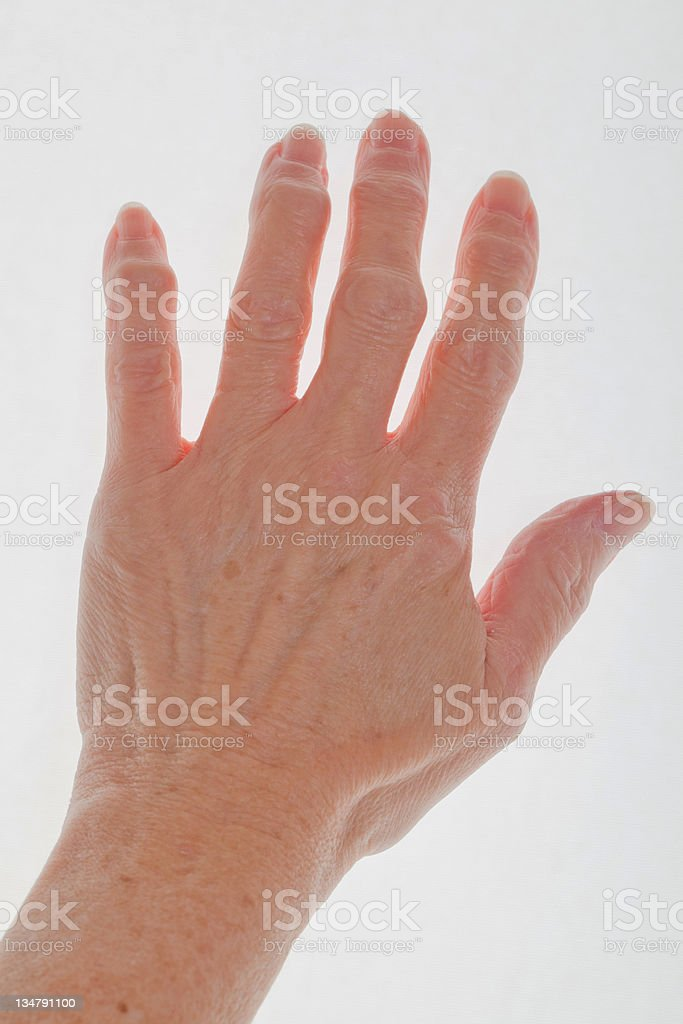 hand with arthritis royalty-free stock photo