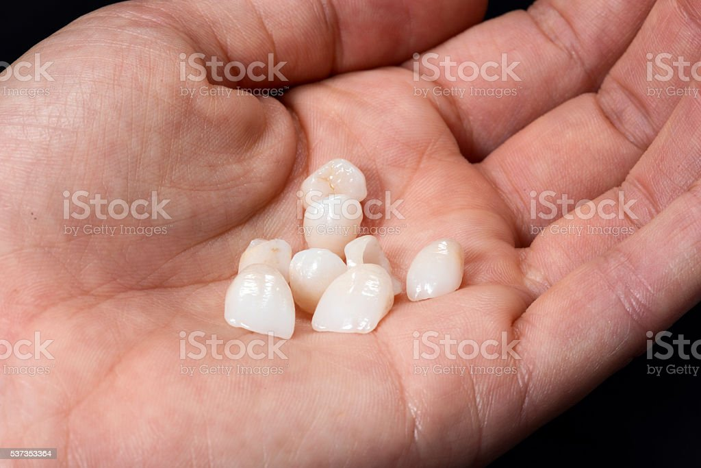 Hand with Dental Veneers stock photo