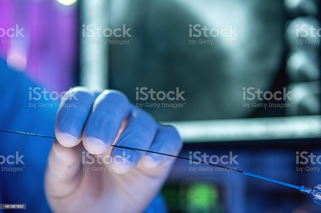 Hand with the stent stock photo
