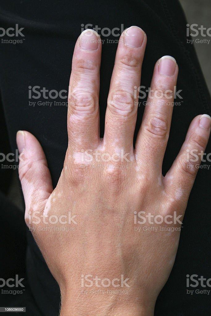 Hand with vitiligo skin condition royalty-free stock photo
