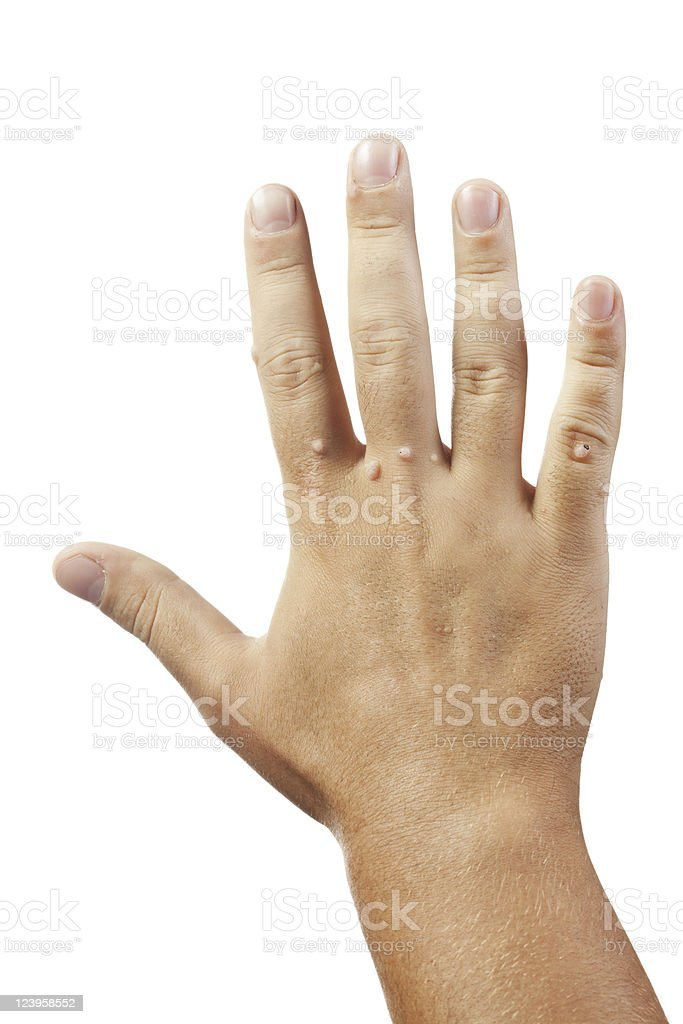 Hand with warts on white background stock photo