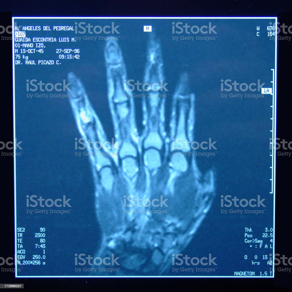 hand xray royalty-free stock photo